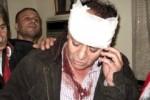 syrian-injured