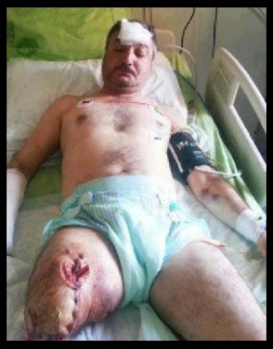 OCTOBER 3, 2013 - FIRST POST - 32 FSA DESERTER OFFICERS KILLED IN LATAKIA, CONFIRMED; RIAD AL-AS'AD WOUNDED AGAIN; ISIS TERRORISTS ONLY SEE DEATH IN LATAKIA AT THE HANDS OF THE SYRIAN ARMY; NEWS AND COMMENTARY 2