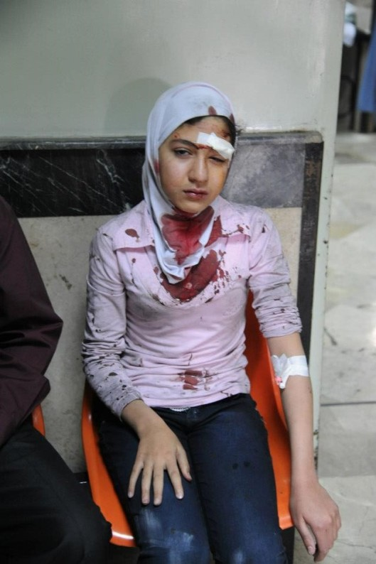 damascus_girl_after_terroristic_attack_20130408