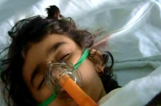 kids-injured-by-terrorists-in-syria