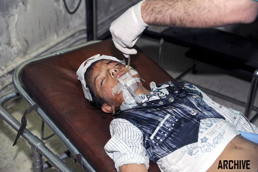 syrian-kid-injured-by-terrorists-archive-529