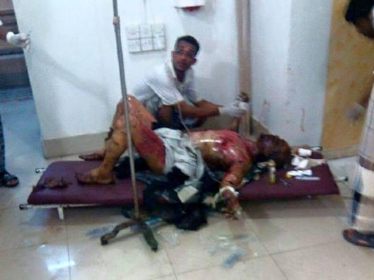 victim-of-saudi-airstrike-south-sana-yemen-2