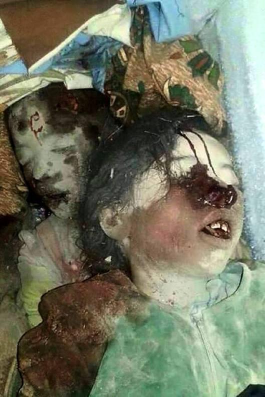 victim-of-saudi-airstrike-south-sana-yemen-3