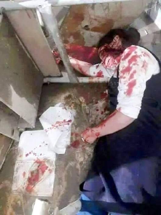 victim-of-saudi-airstrike-south-sana-yemen-4