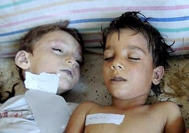 kids-victims-of-FSA-Nusra-terrorists-in-Syria