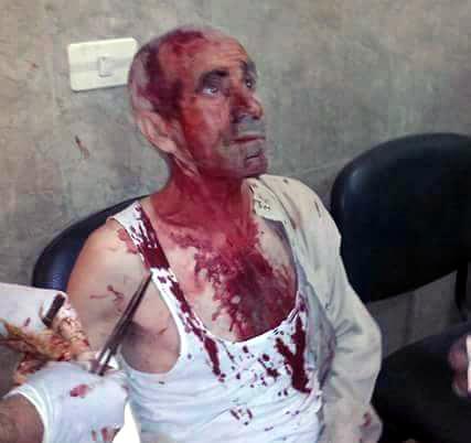 Ain-al-Arab-ISIS-massacre-3
