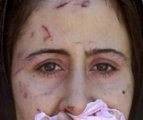 syrian-rape-victim-at-turkish-refugee-camp