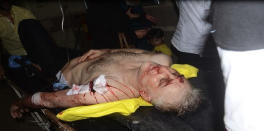 Aleppo-terrorist-attacks-rocket-6