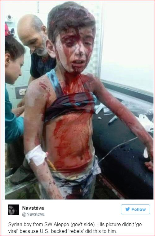 syrian-boy-injured-by-usa-terrorists