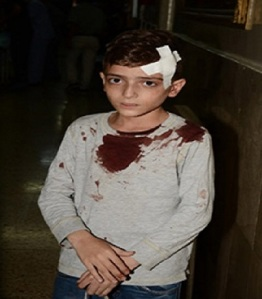 Aleppo, kid injured, 27/10/2016